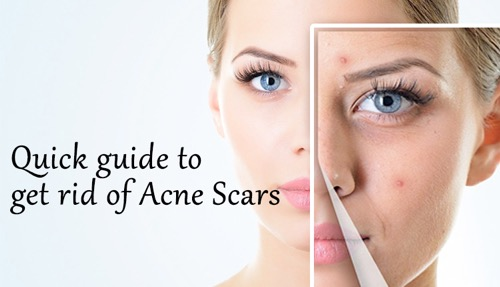 Get Rid of Acne Scars